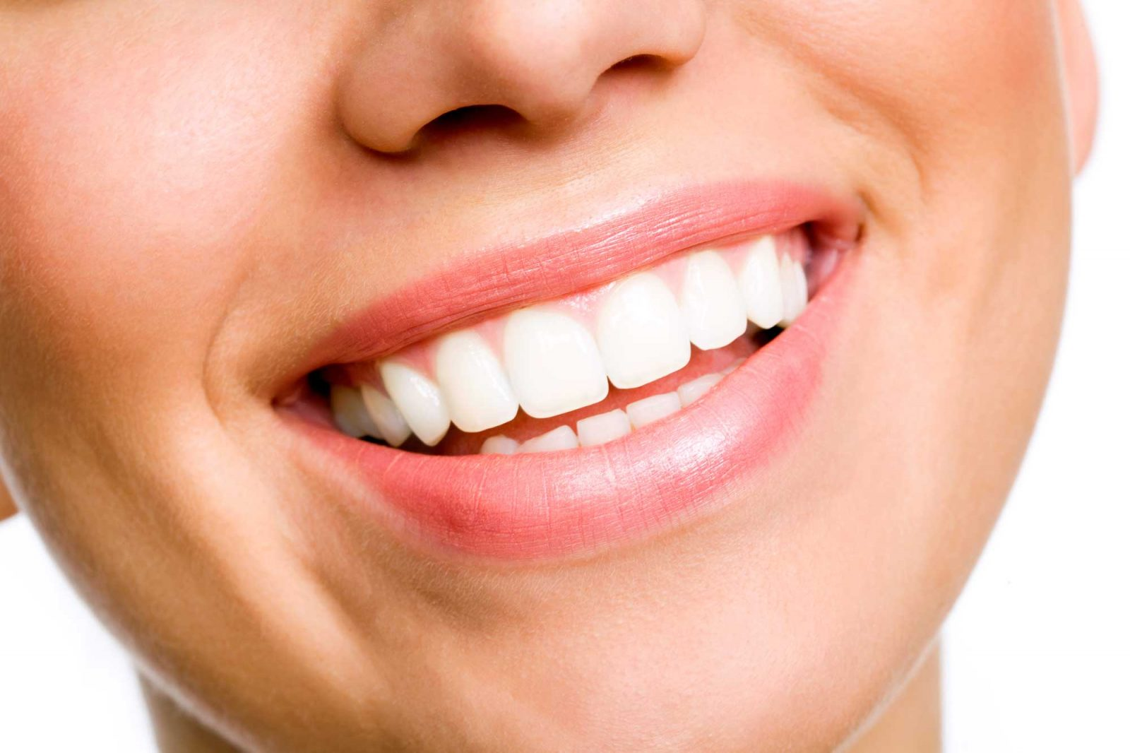 carillas de composite tenerife -clinica dental tenerife - prodental