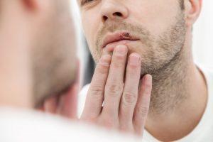 Calentura labial: ¿Qué es y cómo se cura?