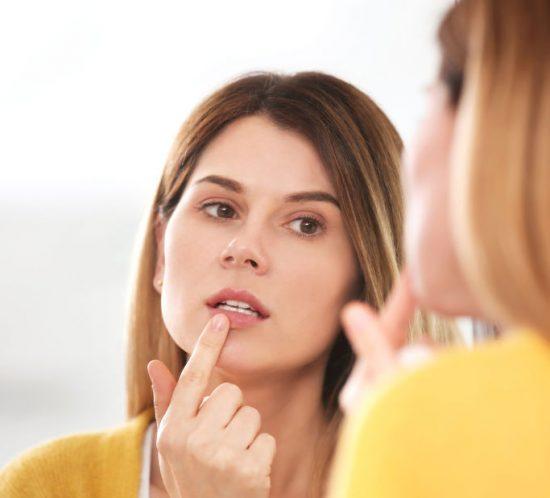 cómo curar el herpes labial blog