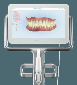 Escaner iTero Element 2 - Antes y después en ortodoncia