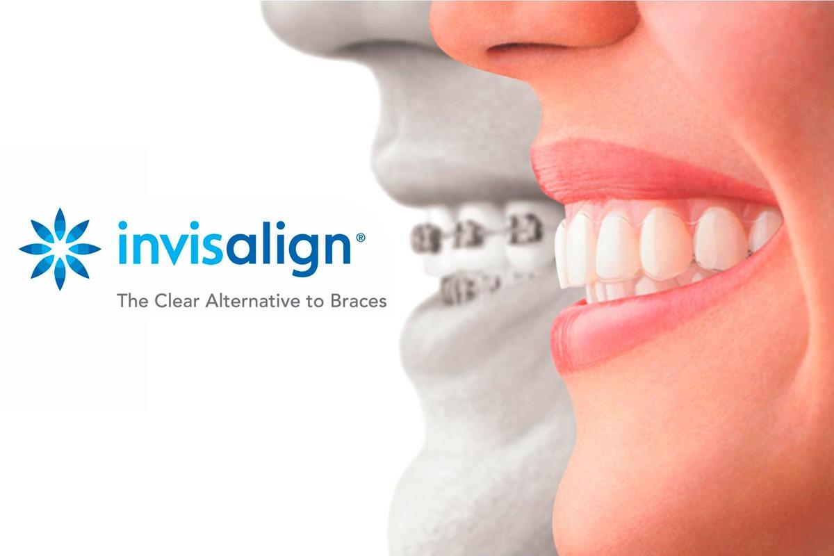 Invisalign - Ortodoncia Invisible - - Santa Cruz de Tenerife