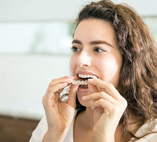 aparatos dentales de ortodoncia tipos y características