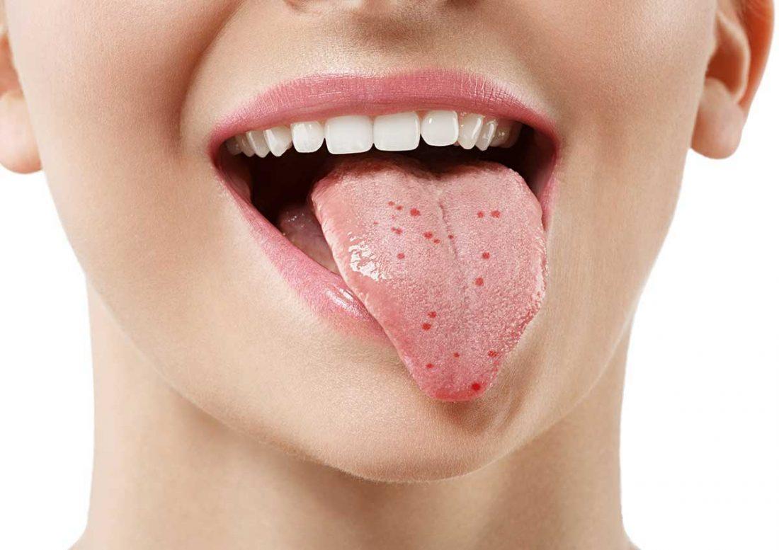 Puntos rojos en la lengua - Prodental Santa Cruz