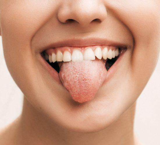 Leucoplasia oral: ¿qué es y qué debemos saber sobre ella?