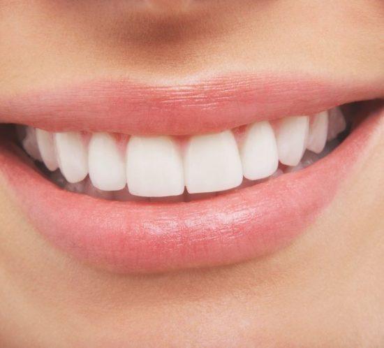 ¿Cuál es el camino para lograr la sonrisa perfecta?